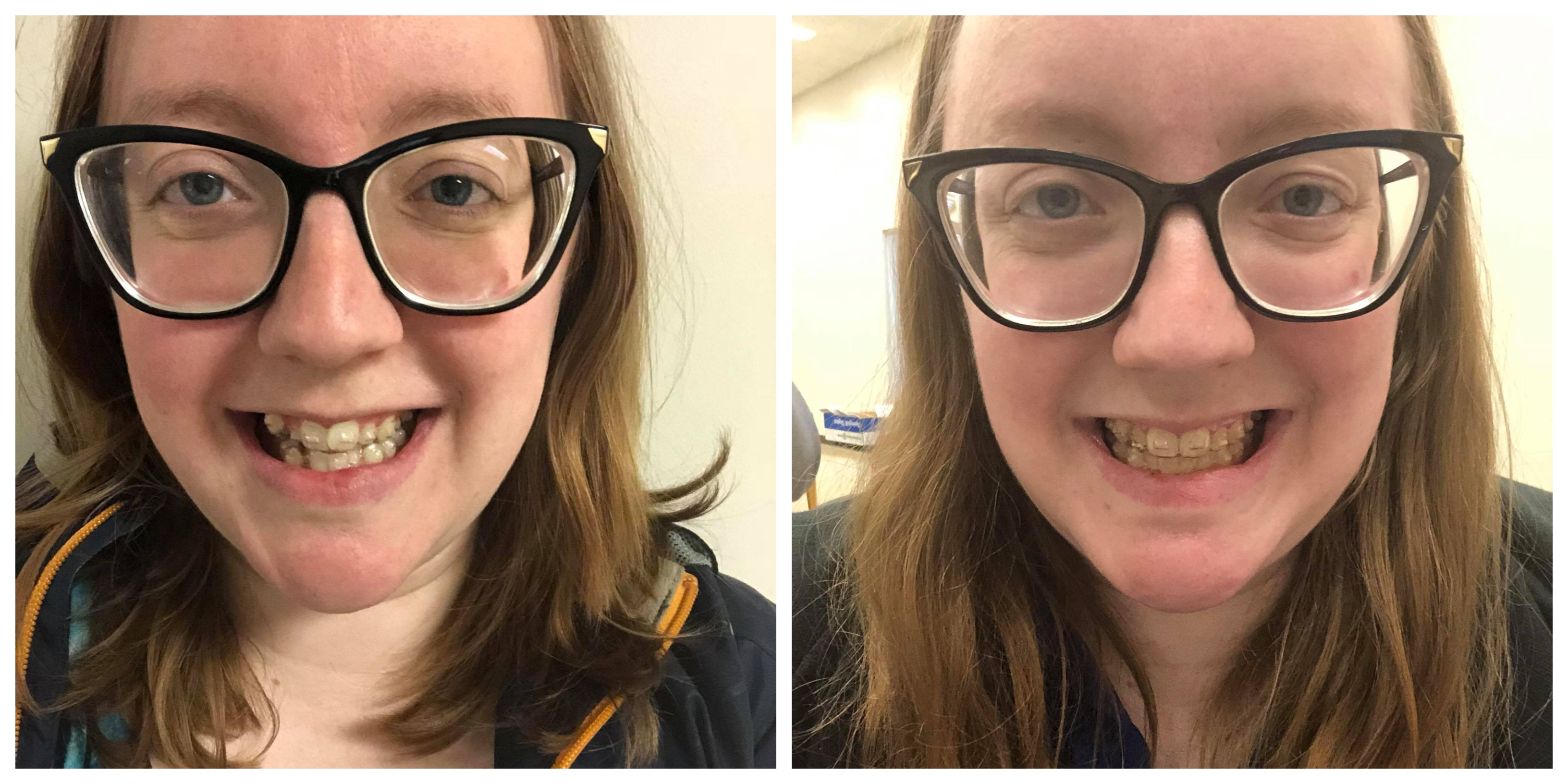 In the Midst of My Invisalign Journey – melissa's musings
